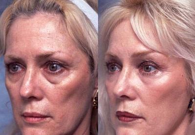 ретиноевый пилинг лица