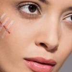 Способы лечения рубцов и шрамов