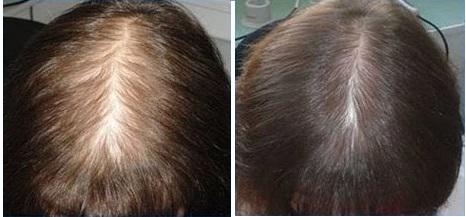 результаты после 6 мес. втирания никотиновой кислоты: рос и густота волос