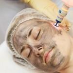 Карбоновый пилинг: новая методика лазерного омоложения кожи