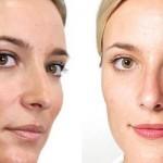 Молочный пилинг: бережное и нежное очищение кожи