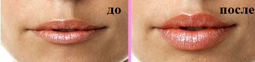 глайтон увеличение губ